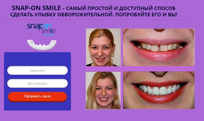 сколько стоят съемные виниры на зубы